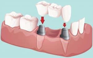 dental-bridge
