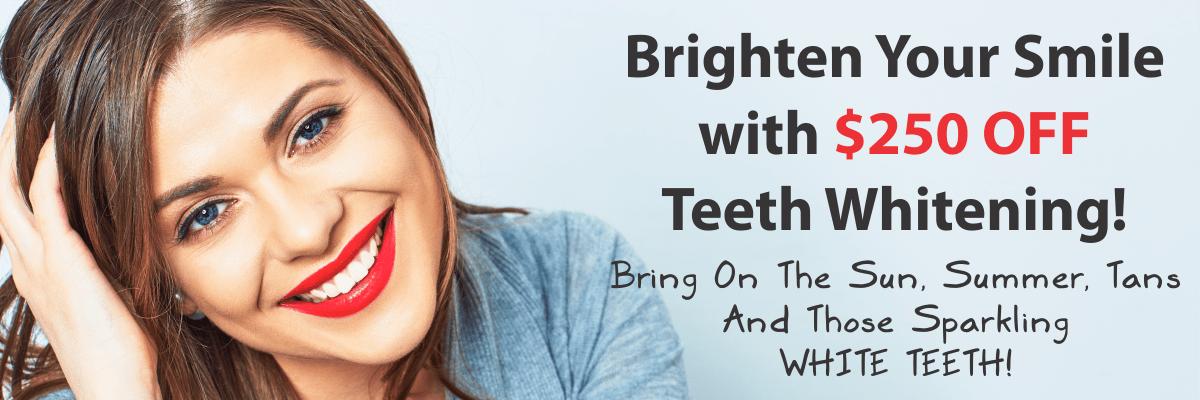 May 250 Off Teeth Whitening